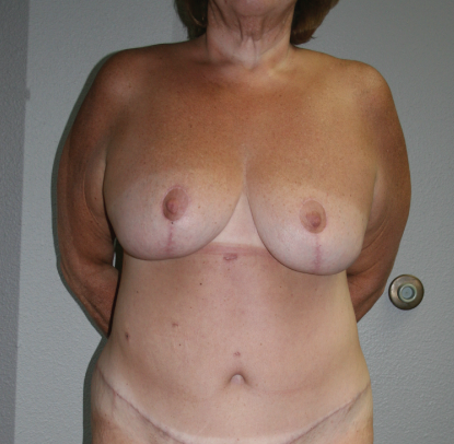 Post Bariatric Weight Loss: Patient A