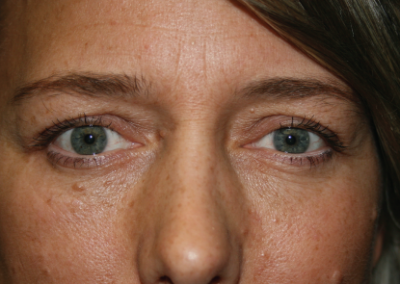 Eyelid Surgery: Patient B