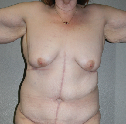 Post Bariatric Weight Loss: Patient B