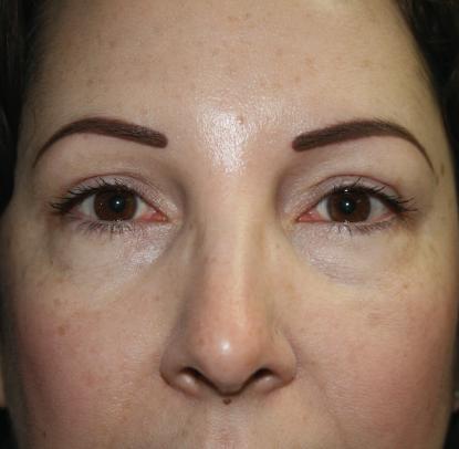 Eyelid Surgery: Patient C