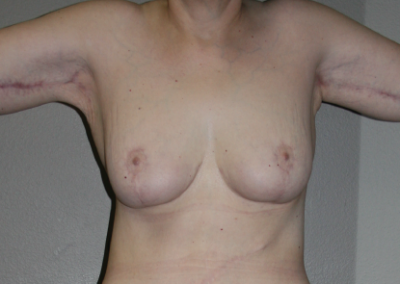 Post Bariatric Weight Loss: Patient C