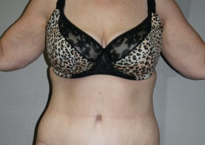 Post Bariatric Weight Loss: Patient E