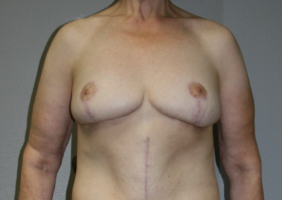 Post Bariatric Weight Loss: Patient F