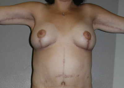 Post Bariatric Weight Loss: Patient G