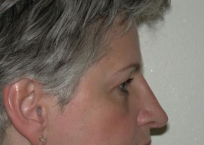 Rhinoplasty: Patient A