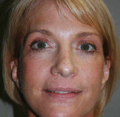 Face Lift: Patient B