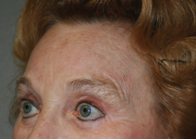 Brow Lift: Patient B