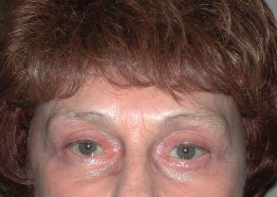 Brow Lift: Patient C