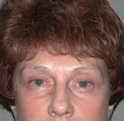 Brow Lift: Patient C