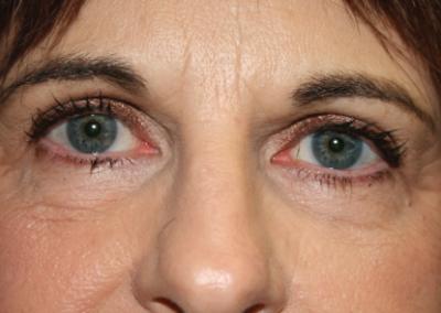 Eyelid Surgery: Patient D