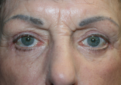 Eyelid Surgery: Patient E