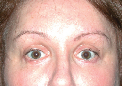 Eyelid Surgery: Patient F