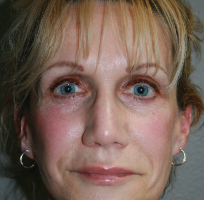 Face Lift: Patient A