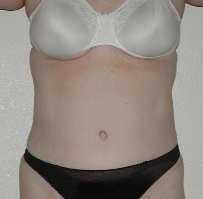Liposuction: Patient B