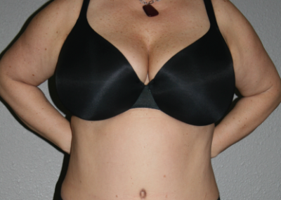 Abdominoplasty: Patient B