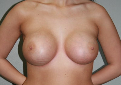 Round Implants Patient B