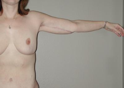 Brachioplasty: Patient B