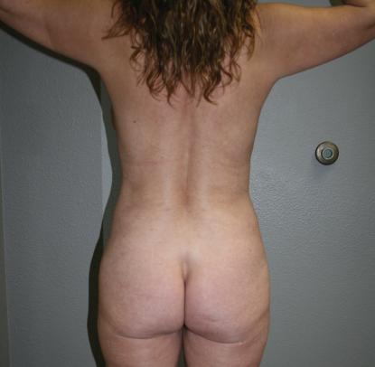 Liposuction: Patient C