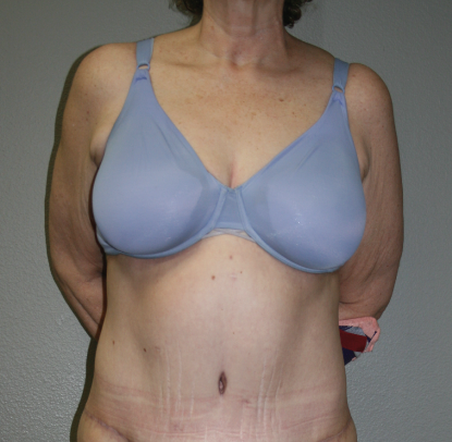 Abdominoplasty: Patient E