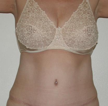 Liposuction: Patient A