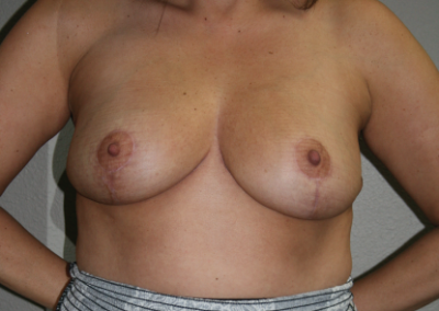 Breast Reduction Patient A