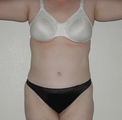 Abdominoplasty: Patient A