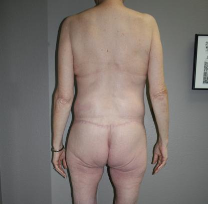 Thighplasty: Patient B