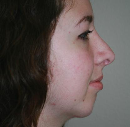 Rhinoplasty: Patient C