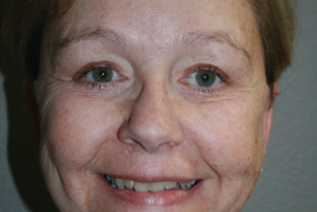 Brow Lift: Patient A