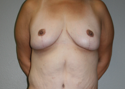 Brachioplasty: Patient D