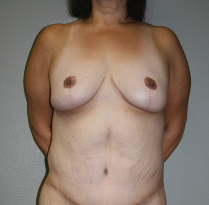 Post Bariatric Weight Loss: Patient D
