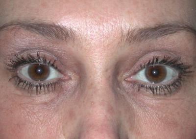 Brow Lift: Patient D