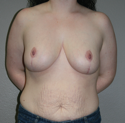 Breast Reduction Patient D