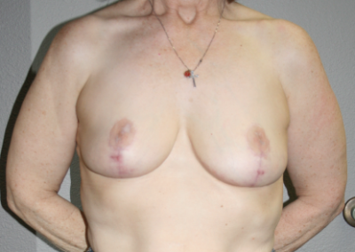 Breast Reduction Patient B