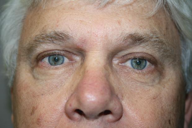 Face: Patient A