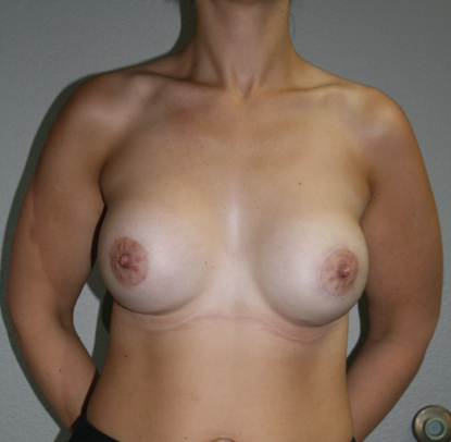 Mastopexy Augmentation: Patient A