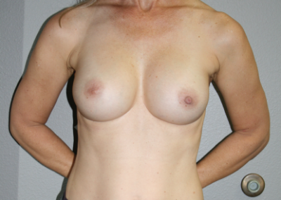 Shaped Implants Patient A