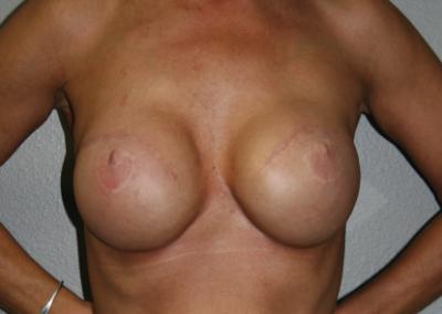 Expander Implant: Patient B