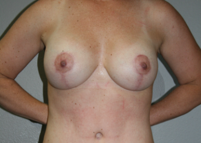Mastopexy Augmentation: Patient C