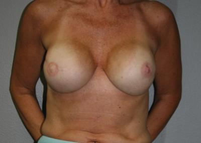 Expander Implant: Patient C