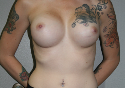 Shaped Implants: Patient B