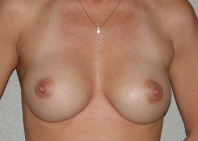 Round Implants Patient C
