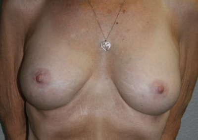 Round Implants: Patient D