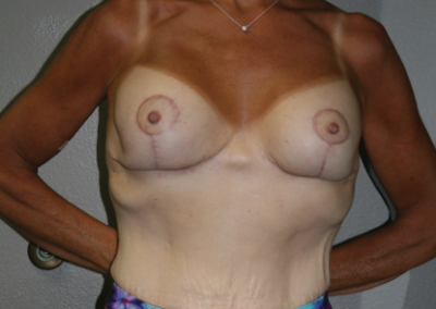 Mastopexy Augmentation: Patient B