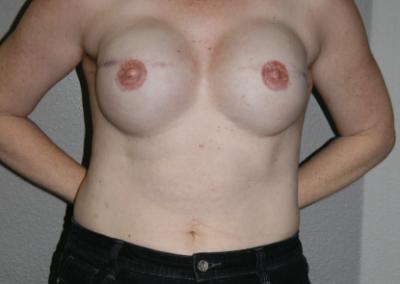 Expander Implant: Patient D