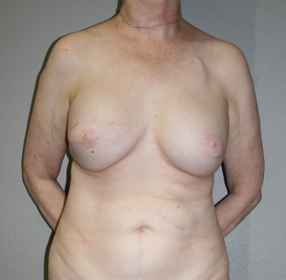 Latissimus Dorsi Flap Implant: Patient C