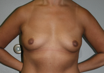 Abdominoplasty: Patient C