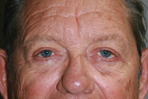 Face: Patient C