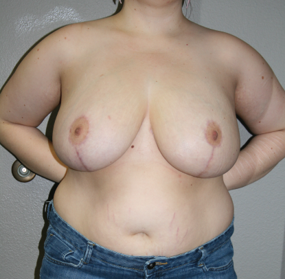Breast Reduction Patient C