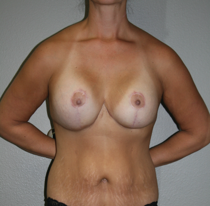 Mastopexy Augmentation: Patient D
